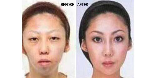 Anak Lahir Jelek dan Istri Ketahuan Operasi Plastik, Jian Feng Minta Cerai