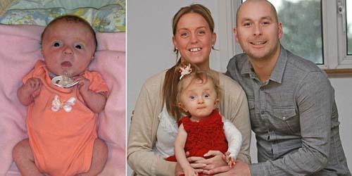 Miris, Bayi Ini Terlahir dengan Kondisi Patah Tulah Diseluruh Tubuhya