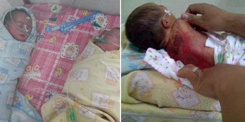 Bayi Kembar Siam Tewas Terpanggang di Inkubator RS Bunda Makassar