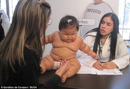 bayi-obesitas-juanita