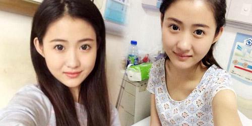 Li Na, Pasien Kanker Tercantik di Tiongkok Meninggal