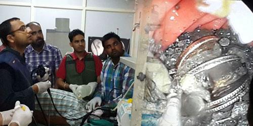 Telan ratusan koin, magnet &; paku, pria india nyaris tewas