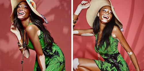 Vitiligo, Kelainan Kulit Belang Model Winnie Harlow