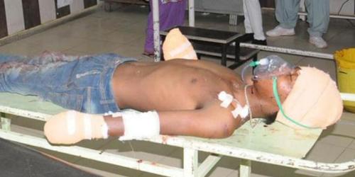 Ayah Bayi Korban Pemerkosaan Potong Kedua Tangan Pelaku