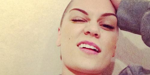Gundul, Jessie J Pede Unggah Foto Bikini di Instagram