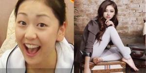 Miss Korea Kwon Ri Sae Operasi Plastik?