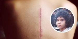 Dul Pajang Foto Bekas Luka Kecelakaan di Instagram