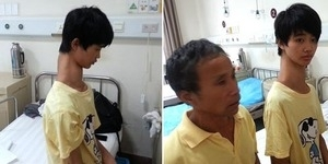 Fu Wengui, Remaja China ini Dijuluki Manusia Jerapah