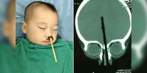 Sumpit Tertancap di Hidung Bocah 2 Tahun Hingga Tembus Otak