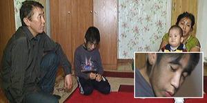 Bocah Serigala Kazakhstan ini Seluruh Tubuhnya Ditumbuhi Rambut