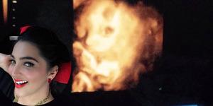 Hasil USG, Ashanty Senang Wajah Bayi Mirip Dirinya