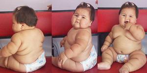 Bayi Gembrot Usia 10 Bulan Bobot 20 Kilogram