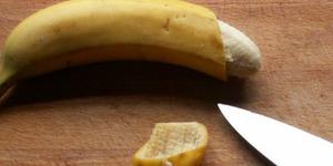 Penis Putus Saat Disunat, Bocah Turki Dapat Kompensasi Rp 4 M