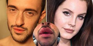 Pria Ini Gagal Operasi Bibir Mirip Lana Del Rey