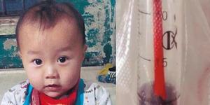 Bayi 1 Tahun Tertancap Sumpit Menembus Otak