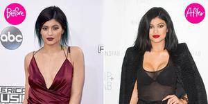 Payudara Lebih Montok, Kylie Jenner Operasi Plastik?