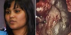 Tumor di Otak Karanam Tenyata Janin Saudari Kembarnya