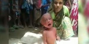 Sakit Demam, Dukun India Paksa Bayi 2 Hari Jalan