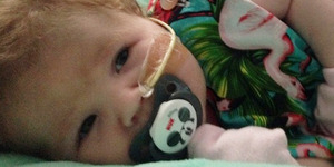Bayi 13 Bulan Penelope Pickup Derita Penyakit Langka