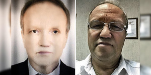 Efek Cangkok Hati, Kulit Bule Rusia Berubah Hitam Negro