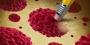 Ilmuwan Temukan Cara Atasi Kanker