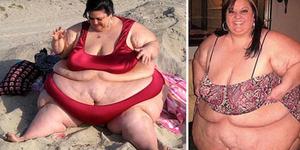 Putus Dari Pacar, Patty Diet Ketat Bobotnya Tinggal 215 Kg