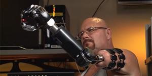 Ini Lengan Robot Kendali Otak yang Sebenarnya
