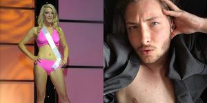 Ingin Jadi Pria, Miss America Ashton Colby Nekat Hilangkan Payudara