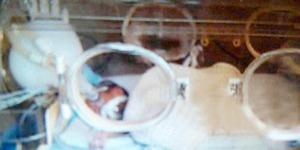 Meninggal, Bayi Prematur Hidup Lagi Saat akan Dikremasi