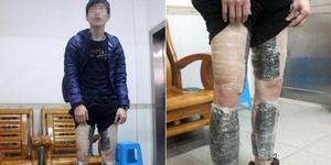 Pemuda Tiongkok Selundupkan 9.000 Memori Ponsel di Tubuhnya